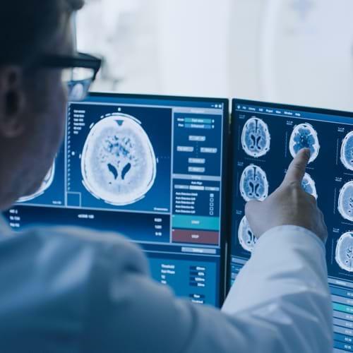 Brain Scan MRI Ultrasound WEB